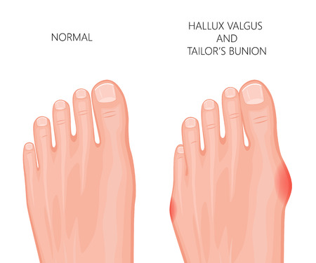 Illustration of the normal foot, valgus deviation of the first toe  and tailors bunion.