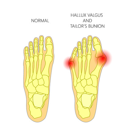 Illustration of the normal foot, valgus deviation of the first toe  and tailors bunion.   Used: gradient, transparency. Blend mode.