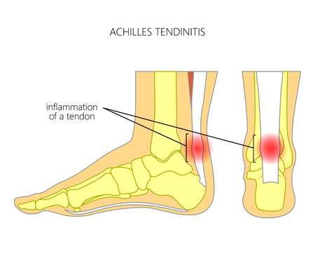 Illustration of Skeletal ankle (side view and back view) with tendinitis of Achilles tendon. Used: Gradient, transparence, blend mode.