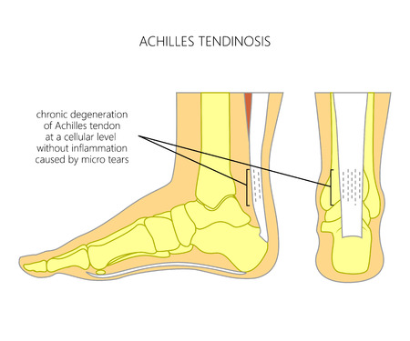 Illustration of Skeletal ankle (side view and back view) with tendinosis of Achilles tendon. Illustration