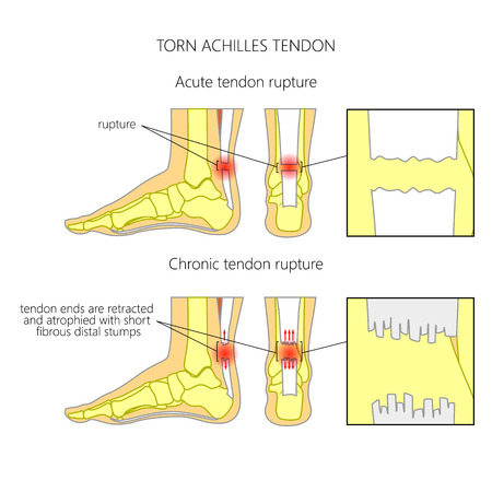 atrophy: Illustration of Skeletal ankle (side view and back view) with torn Achilles tendon. Used: Gradient, transparence, blend mode.