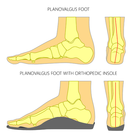 Illustration of Flat foot without and with orthopedic insole. Side and back views.