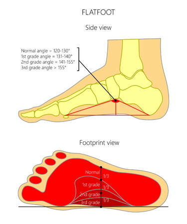 Illustration of flatfoot grade. Side view and bottom view (footprint).