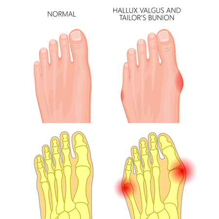 deviation: Illustration of the normal foot, valgus deviation of the first toe  and tailors bunion. External and skeletal views.  Used: gradient, transparency, Blend mode.