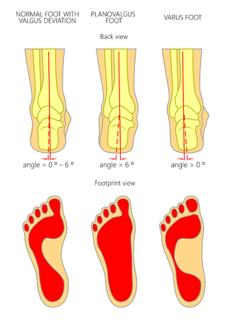 Illustration of normal,  Planovalgus and varus  feet with footprint.