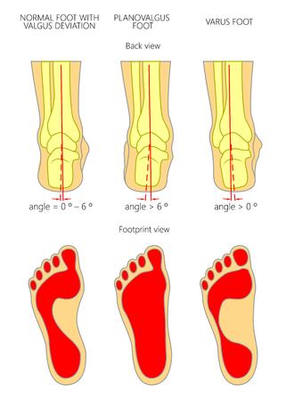 fallen: Illustration of normal,  Planovalgus and varus  feet with footprint.