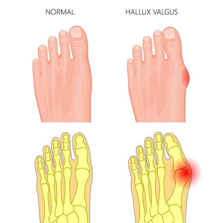 Illustration of the normal foot and hallux valgus. External and skeletal views.  Used: gradient, transparency, Blend mode. 일러스트