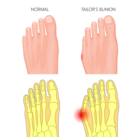 proximal: Illustration of the normal foot and Tailors bunion. External and skeletal views.  Used: gradient, transparency, Blend mode.