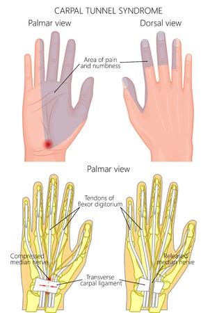 Ilustración del problema del síndrome del túnel carpiano y la cirugía. Gradiente usado, transparencia. Ilustración de vector