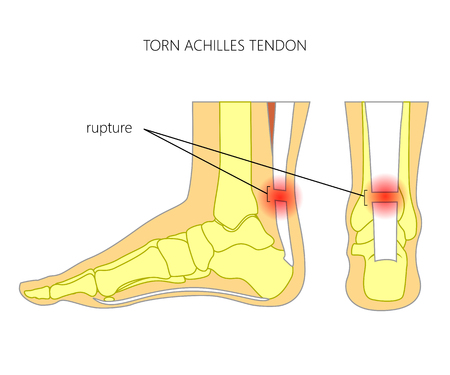 Ilustración de tobillo esquelético (vista lateral y vista posterior) con el tendón de Aquiles desgarrado. Utilizado: gradiente, transparencia, modo de mezcla.