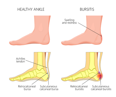 Illustration of Skeletal ankle (side view) with Retrocalcaneal and Subcutaneous calcaneal bursitis. Used: Gradient, blend, transparency, blend mode.