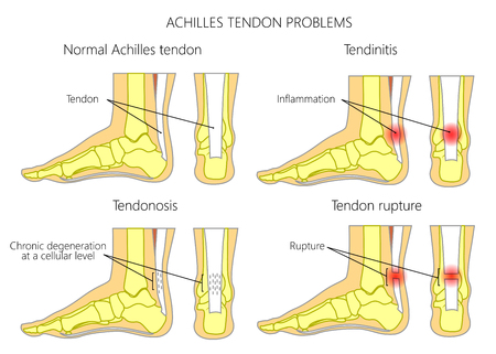 Illustration of Skeletal ankles (side view and back view) with normal and injured  Achilles tendon (tendinitis, tendinosis and torn). Used: Gradient, transparence, blend mode. Stock Illustratie