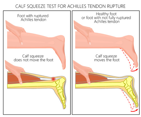 Illustration of a calf squeeze test Achilles tendon rupture. External and Skeletal view of an ankle. Used: Gradient, transparence, blend mode. 免版税图像 - 89407947