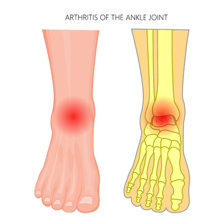 Vector illustration of Arthritis of an ankle joint. Front view of the human foot with pain.
