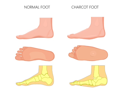 Illustration of normal and rocker bottom Charcot foot (soles of the feet and medial view shows deformity of the foot).