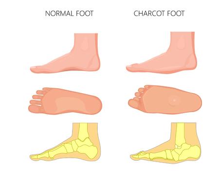 Ilustracja normalnej i rocker bottom Charcot foot (podeszwy stóp i widok przyśrodkowy pokazuje deformację stopy). Ilustracje wektorowe