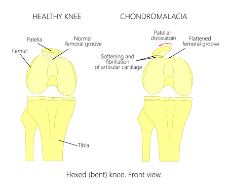 Illustration (diagram) of normal knee joint and a knee with chondromalacia patella. Flexed (bent) knee. Front view.