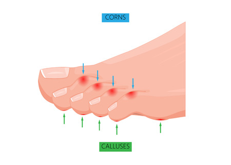 Illustration of difference between Corns and calluses. Used: gradient, transparency
