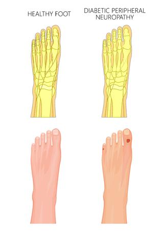 糖尿病性末梢神経障害の図。傷ついた神経やつま先の潰瘍と健康的な足と足。使用済み: 透明度、グラデーション、ブレンドモード。  イラスト・ベクター素材