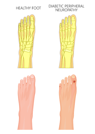 Illustration of Diabetic Peripheral Neuropathy. Healthy foot and foot with damaged nerves and ulcers on the toes. Used: transparency, gradient, blend mode. Illustration