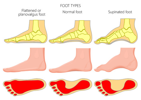 Illustration vectorielle des types de pied. Vues externe et squelettique du côté médial d'une cheville avec empreinte.