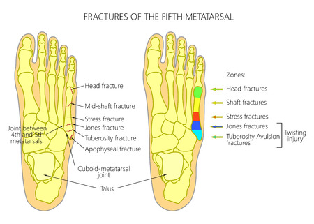 Illustration (diagram) of the 5th metatarsal Fractures (types and zones classification) in the foot.