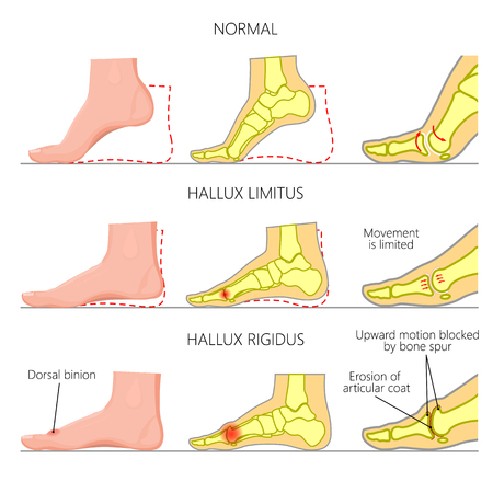 Illustration (Diagramm) der normalen Funktion, begrenzte Bewegung und starre Deformität (mit degenerativer Arthritis) des ersten Metatarsophalangealgelenks des Fußes. Verwendet: Gradient, Blend, Transparenz, Mischmodus.