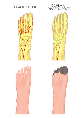 Abbildung eines ischämischen diabetischen Fußes mit Gangrän der Zehen des Fußes. Gebraucht: Transparenz, Farbverlauf.