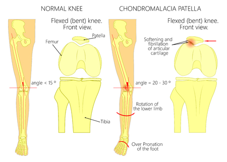 Illustration (diagram) of normal leg with a healthy knee and a leg with over pronation of the foot arch and chondromalacia patella. Used: gradient, blend mode, transparency. Иллюстрация