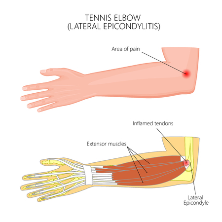 Illustration of Lateral Epicondylitis or tennis elbow.  Used: Gradient, transparency, blend mode. Иллюстрация