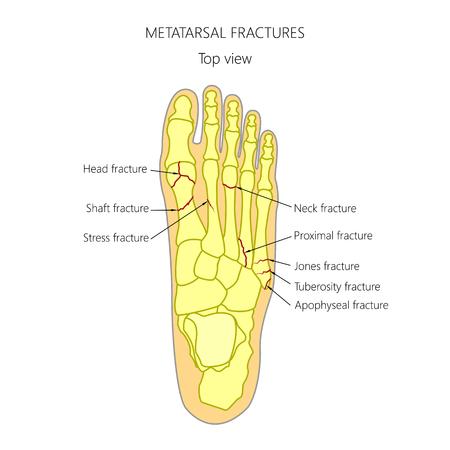 Illustration (diagram) of Metatarsal fracture types.