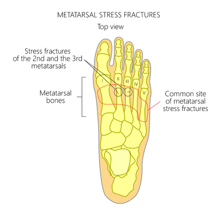 Illustration (Diagram) of Metatarsal Stress fractures in the foot.