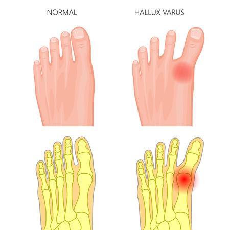 Abbildung des normalen Fußes und des Hallux Varus. Verwendet: Farbverlauf, Transparenz, Mischmodus. Standard-Bild - 89776716