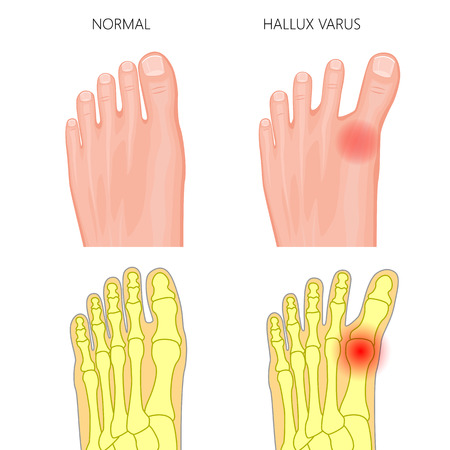 Illustration of the normal foot and hallux varus. Used: gradient, transparency, Blend mode.