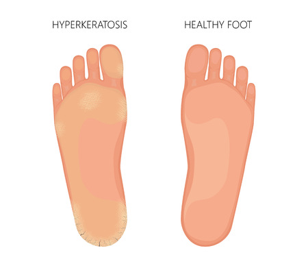 Illustration of Plantar Hyperkeratosis of the foot with dry sole skin and cracked heel. Used transparency.