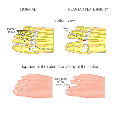 Vector illustration (diagram). Deviation of the toe. Mechanism of rupture of plantar plate of the seond toe of the foot. External and skeletal views of an ankle.