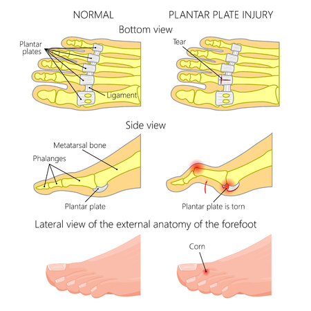 Vector illustration (diagram). Hammer toe. Plantar plate injury. Mechanism of rupture of plantar plate of the second toe of the foot. External and skeletal views of an ankle. Illustration