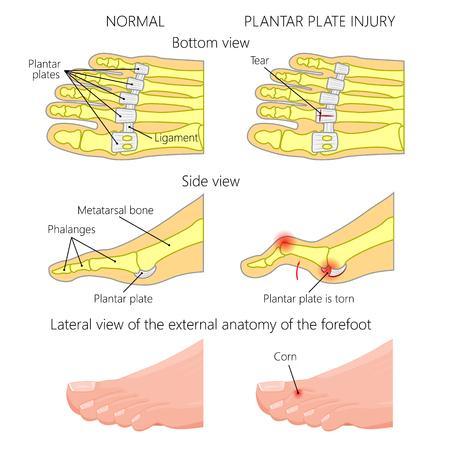 Vector Illustration Diagram Hammer Toe Plantar Plate Injury