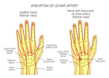 Hamate 骨に隣接して位置する外傷後尺骨動脈動脈瘤の概略図である。