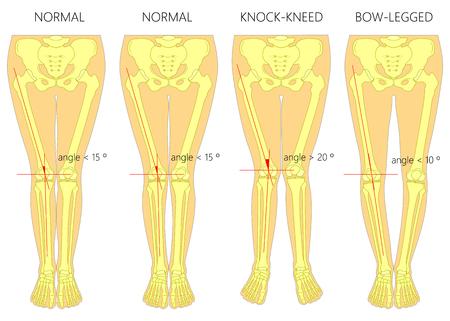 Vector diagram. Vormen van de benen. Normale en gebogen poten. Kniel de knieën. Gebogen benen. Genu valgum en genu varum. Stock Illustratie