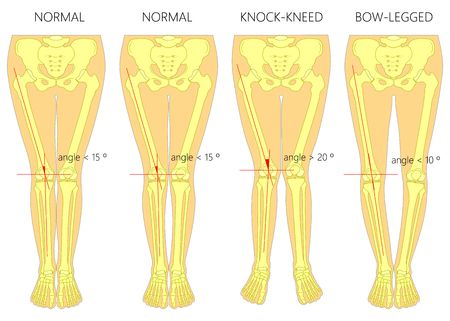 Vector diagram. Shapes of the legs. Normal and curved legs. Knock knees. Bowed legs. Genu valgum and genu varum. Illustration
