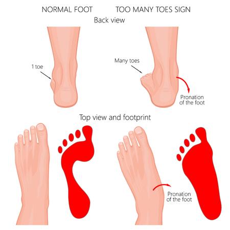 Ilustración vectorial del pie humano normal y el pie con pronación o pie plano, con deformidad del retropié. Demasiados dedos de los pies firman.