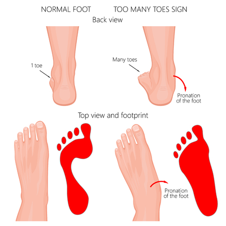 Ilustracja wektorowa normalnej ludzkiej stopy i stopy z pronacją lub płaskostopiem, ze zniekształceniem tylnej stopy. Zbyt wiele znaków toes.
