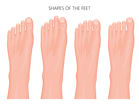 Most common types of human forefoot shapes with different variations of relative length of the toes. Illustration