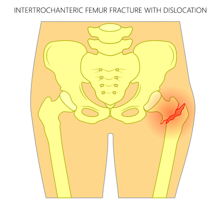 Vector illustration of healthy human hip and intertrochanteric femur fracture with dislocation. For advertising and medical publications. EPS 10  Illustration