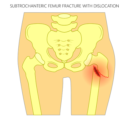 Vector illustration of healthy human hip and subtrochanteric femur fracture with dislocation. For advertising and medical publications. EPS 10  Illustration