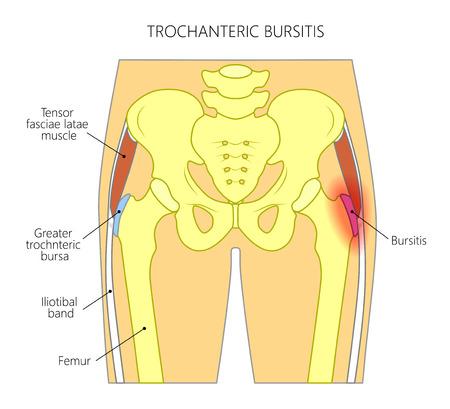 Vector ilustración de una pelvis humana y la cadera con dolor en la articulación de la cadera y bursitis trocantérea. Vista frontal. Para publicidad y publicaciones médicas. EPS 10.