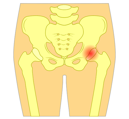 Vector illustration of healthy human hip joint and a joint with pain or injury. EPS 10