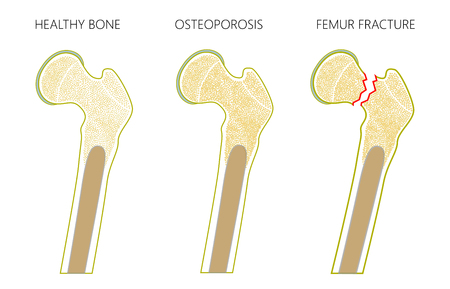 Vector el ejemplo de un hueso humano sano del muslo, la osteoporosis del fémur y la fractura del cuello femoral con la dislocación aislada en el fondo blanco. Para publicidad y publicaciones médicas. EPS 10.