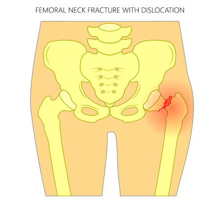 Vector illustration of healthy human hip and femoral neck fracture with dislocation. For advertising and medical publications. EPS 10